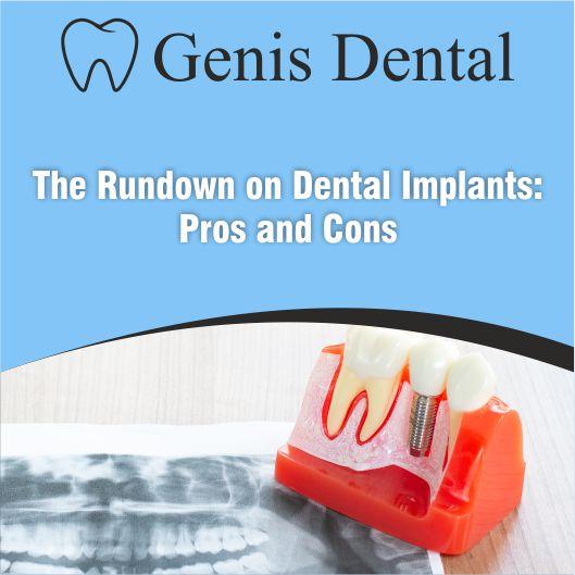 Dental Impants prons and cons